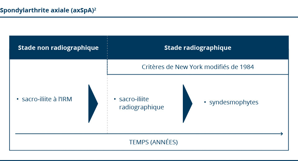 Classification de la spondylarthrite axiale