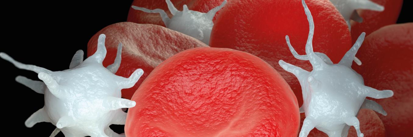 Immunthrombozytopenie (ITP)